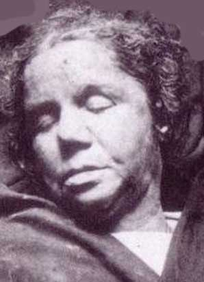 The mortuary image of Alice McKenzie.