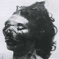 Mortuary image of ripper victim - Catherine Eddowes.
